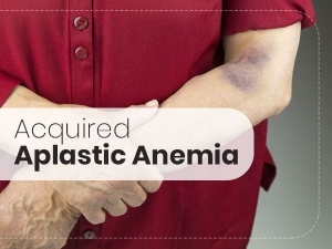Acquired Aplastic Anaemia Causes Symptoms Diagnosis And T