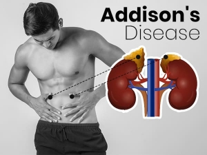Addisons Disease Symptoms Causes Risk Factors Treatment