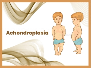 Achondroplasia Causes Symptoms Diagnosis Treatment