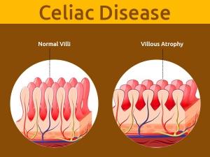 Celiac Disease Symptoms Causes Risk Factors Treatment