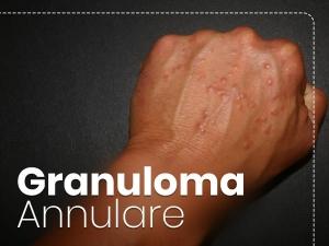 Granuloma Annulare Types Causes Symptoms Diagnosis Treatment