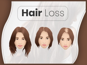 Hair Loss Types Causes Symptoms Treatment Prevention