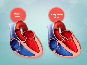 Leaky Heart Valve Causes Symptoms Diagnosis Treatment