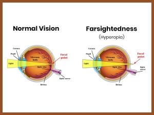 Hyperopia Causes Symptoms Treatment Prevention