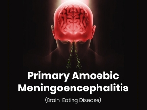 Primary Amoebic Meningoencephalitis Causes Symptoms Treatment Prevention