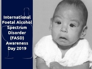 International Foetal Alcohol Spectrum Disorder (FASD) Awareness Day 2019 - Significance