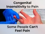 Congenital Insensitivity To Pain Cip Causes Symptoms Complications Treatment