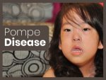 Pompe Disease Types Causes Inheritance Diagnosis Treatment