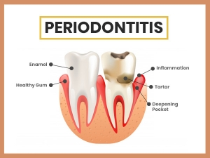 Periodontitis Types Causes Symptoms Treatment And Prevention
