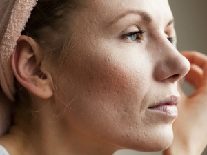 Xerosis Cutis Causes Symptoms And Treatment