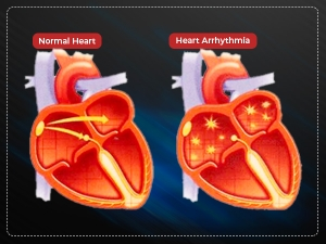Arrhythmia Causes Types Symptoms Treatment And Prevention