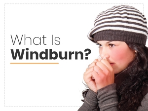 Windburn Causes Symptoms Treatment And Prevention