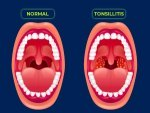 Tonsillitis Causes Symptoms Diagnosis Treatment