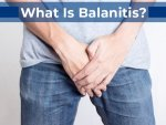 Balanitis Types Causes Symptoms Diagnosis Complications Treatment And Prevention