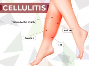 Home Remedies To Treat Cellulitis