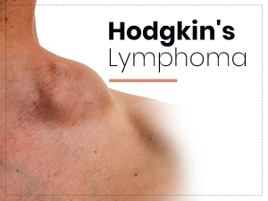 Hodgkins Lymphoma Types Causes Symptoms Risks And Treatment