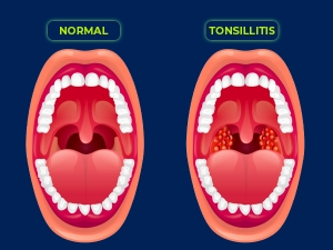 Tonsillitis Causes Symptoms Diagnosis Treatment