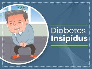 Diabetes Insipidus: Causes, Symptoms, Diagnosis, Treatment And Prevention