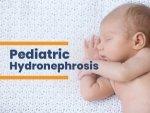 Paediatric Hydronephrosis Causes Types Symptoms Treatment