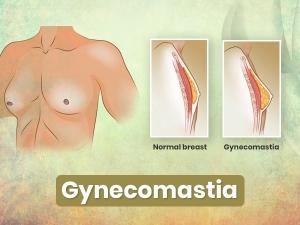 Gynecomastia Causes Symptoms Risks Treatment