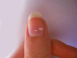 White Spot On Nails Types Causes Symptoms Treatment Prevention