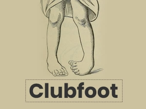 Clubfoot Causes Symptoms Risks Treatment And Prevention