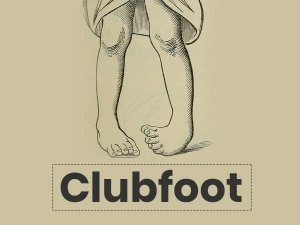 Clubfoot: Causes, Symptoms, Risk Factors, Diagnosis, Treatment And Prevention