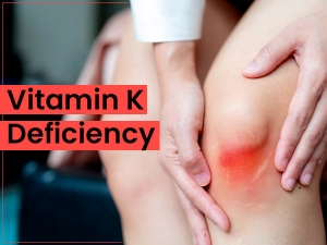 Vitamin K Deficiency Causes Symptoms Diagnosis Treatment Prevention