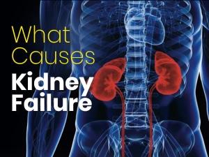 Kidney Failure Causes Types Symptoms Treatment Prevention
