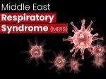 Middle East Respiratory Syndrome Mers Causes Symptoms Diagnosis Treatment