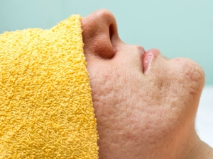 What Causes Large Pores