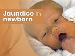 Jaundice In Newborns: Causes, Symptoms, Risk Factors, Diagnosis And Treatment