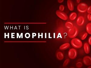 Haemophilia Causes Symptoms Complications Diagnosis Treatment