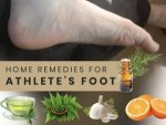 Home Remedies To Treat Athletes Foot