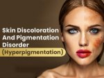 Hyperpigmentation Causes Symptoms Treatment Prevention