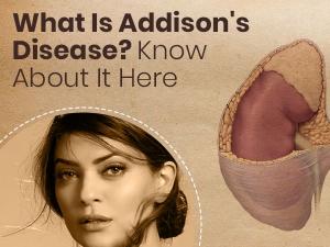 Addisons Disease Symptoms Causes Risk Factors Treatment