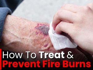 Fire Burns Treatment Prevention Tips