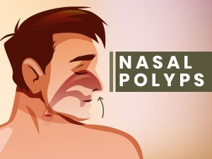 Nasal Polyps Causes Symptoms Risks Treatment