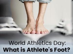 Athletes Foot Causes Symptoms Risks Treatment Prevention
