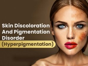 Is Hyperpigmentation A Serious Skin Condition? Know About The Causes, Treatments and Prevention