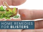 Home Remedies For Blisters On Face Lips Tongue Feet