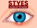 Stye Causes Symptoms Risks Treatment Prevention