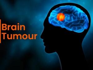 Brain Tumour Types Causes Symptoms Risks Treatment