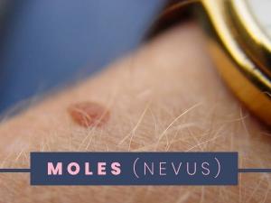 Moles Types Causes Risk Factors Treatment Prevention