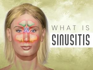 Sinusitis Causes Symptoms Risk Factors Diagnosis Treatment