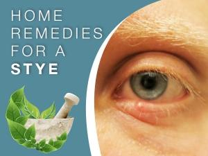 Home Remedies To Get Rid Of Stye
