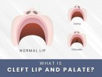 Cleft Lip And Palate Causes Symptoms Risks Treatment Prevention
