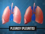 Pleurisy Causes Symptoms Risks Treatment Prevention