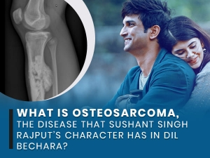 What Is Osteosarcoma Disease That Sushant Singh Rajput Character Has In Film Dil Bechara