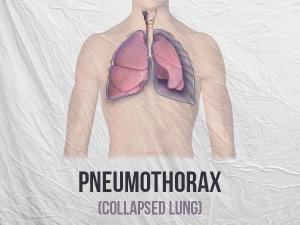 Pneumothorax Types Causes Symptoms Risk Factors Treatment